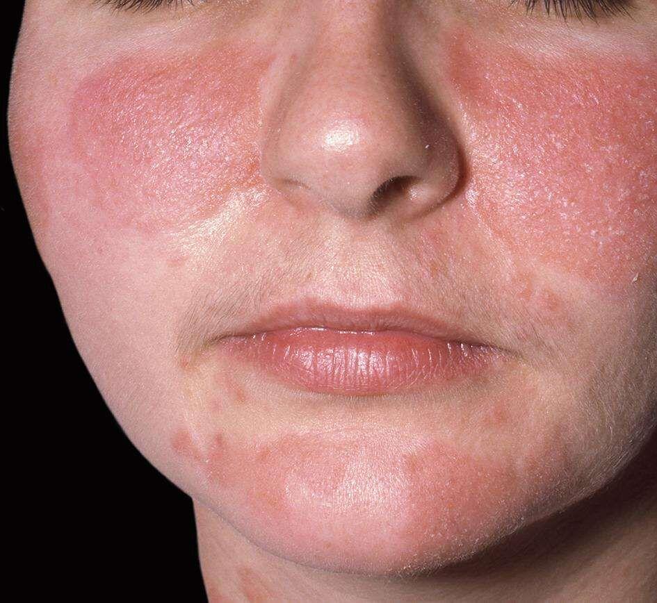 La dermatite allergique ressemble beaucoup à la dermatite irritante, sauf qu'elle est beaucoup plus rare.
