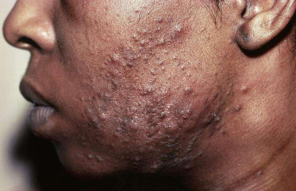 """L'acné """"dite « vulgaire » peut s'aggraver chez les personnes déjà concernées avec le port du masque."""""""